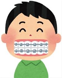 医療費控除 歯科矯正